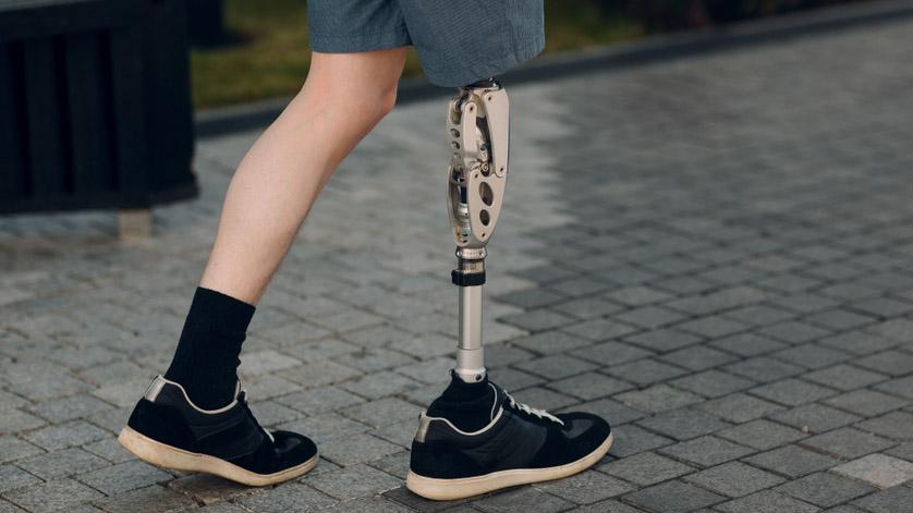 Exceptional Houston Area Teen Uses Prosthetics For