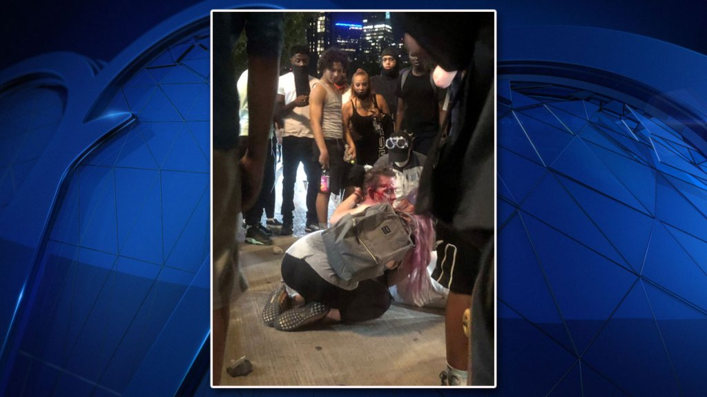 Onlookers tend to man whose attack was captured on video and posted on social media. The man is reportedly in stable condition.
