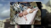 Oklahoma Baby Remains on Life-Support at Dallas Hospital Due to RSV