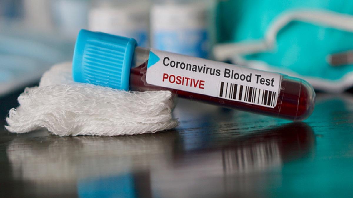 Coronavirus test: What is it like to get the nasal swab ...  |Test Covid
