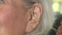 A Medication That Could Reverse Hearing Loss
