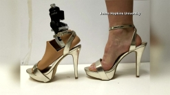 New High Heel Prosthetic Developed By Students