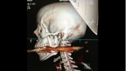 Woman Survives Being Shot Through Mouth with Harpoon