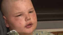 Boy Stung By Hundreds of Bees