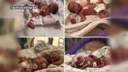Arizona Hospital Welcomes Quadruplets