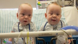 New Video: Formerly Conjoined Twins Leave Hospital