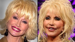 Plastic Surgery: Celebrities Then and Now