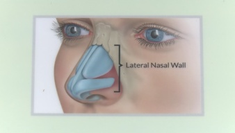 LATERA Nasal Implant Used to Improve Breathing