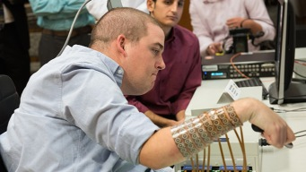Brain Implant Helps Man Regains Use of Paralyzed Hand