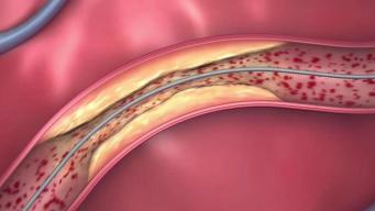 Absorbable Stents Right For Some, According to Doctors