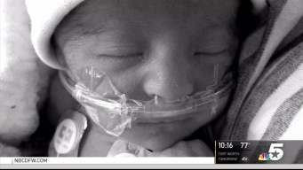 Child Beats Cancer, Outlives Trisomy 18 Prognosis