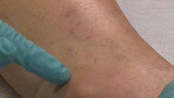Sclerotherapy May Help Erase Spider Veins
