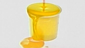 Day Care Urine Stolen to Pass Drug Test