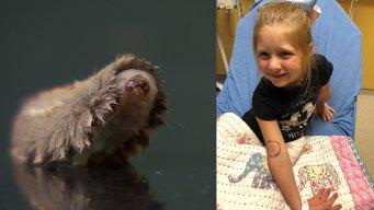 Rockwall Child Hospitalized After Venomous Caterpillar Sting