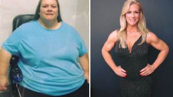 Woman Loses More Than 300 Pounds After Near-Fatal Crash