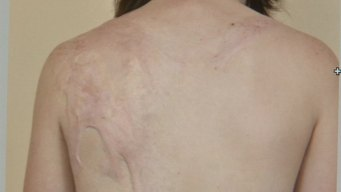 Old Technique Offers New Hope for Burn Victims