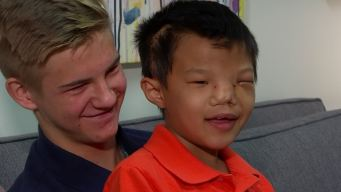 Surgery Changes Life of Orphaned Child