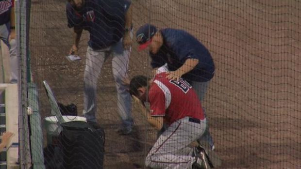 [DFW] Bat Boy Hit In Face By Foul Ball
