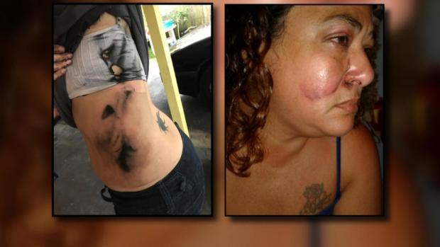 [NATL-DFW] Vape Pen Battery Blast Injures Florida Mother