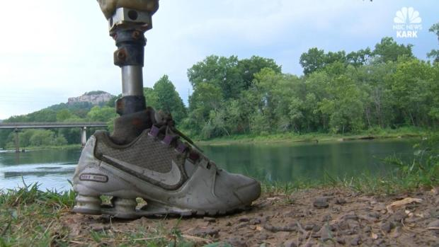 [DFW] Fisherman Reels in Prosthetic Leg