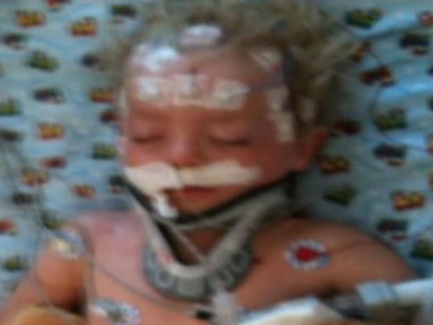[DFW] Rare Procedure Saves 4-Year-Old