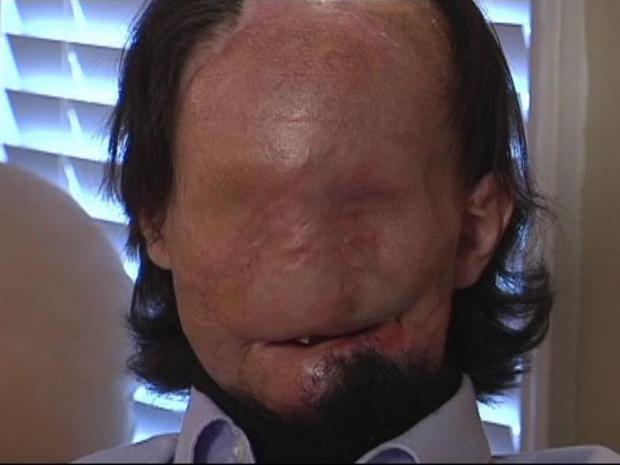 [DFW] Burn Patient Hopes to Become Face Transplant Case