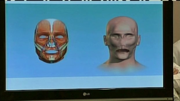 [DFW] Doctor Explains Face Transplant Surgery