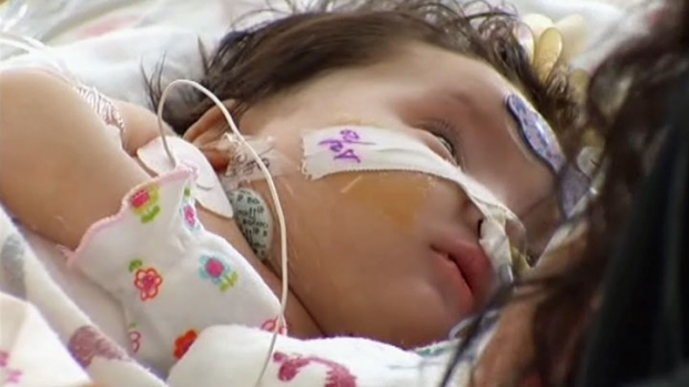[DFW] Dallas Baby Receives Artificial Heart