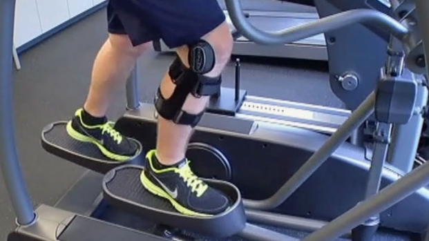 [DFW] ACL Injuries in Kids on the Rise