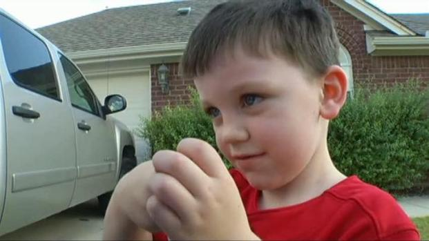 [DFW] Dad Kills Coyote That Attacked 3-Year-Old