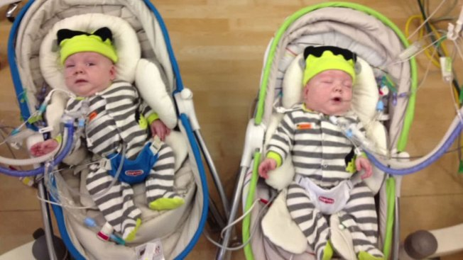 Conjoined Twins Separated In August Wont Be Home For The Holidays