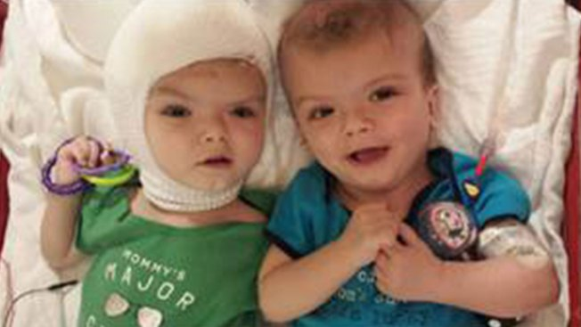 Once-Conjoined Twins Headed to Rehab 9 Weeks After Surgery