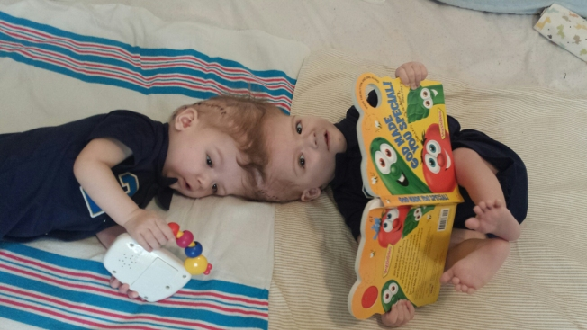 Mom Shares Emotional Update After Conjoined Twins Separated