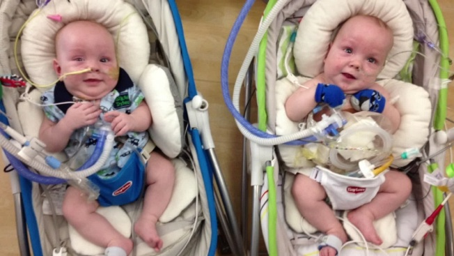 Formerly Conjoined Twins Continue Recovery After Surgery Nbc 5