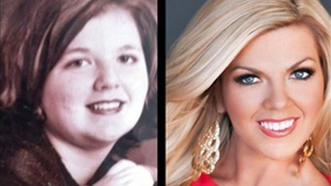 Once-Obese Girl Grows Into Miss Texas Contestant