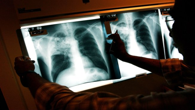 Tuberculosis Tests Done After Cases at Houston-Area School