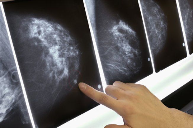Begin Mammograms at 40: SGK for the Cure