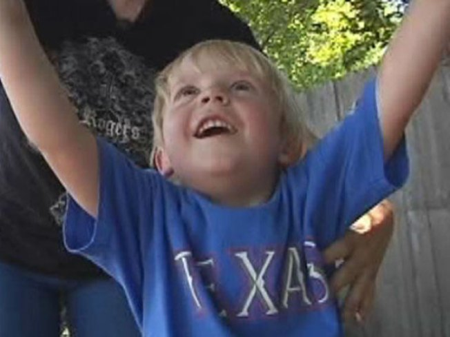 Rarely Used Procedure Saves 4-Year-Old Boy