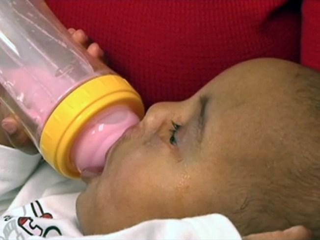 Southlake Doc Rebuilds Toddler's Face