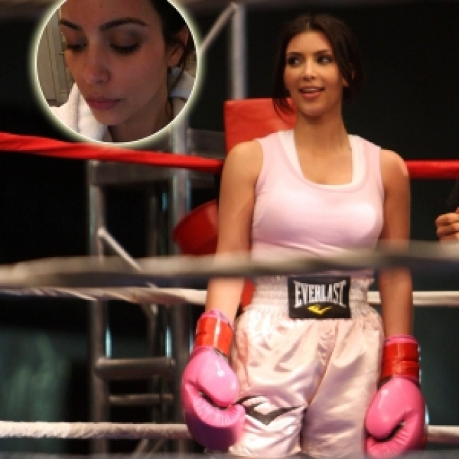 Kim Kardashian Left With 'Black Eye,' Brother Suffers Concussion At Charity Boxing Event