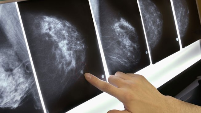 Parkland Handed Grant to Provide Free Mammograms