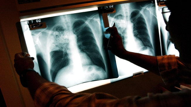 """New """"Totally Drug-Resistant Tuberculosis"""" Strain Found"""
