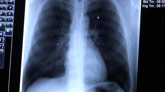 Tests Show No New TB Cases in Denton
