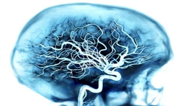 Esame del sangue per la malattia di Alzheimer mostra la promessa