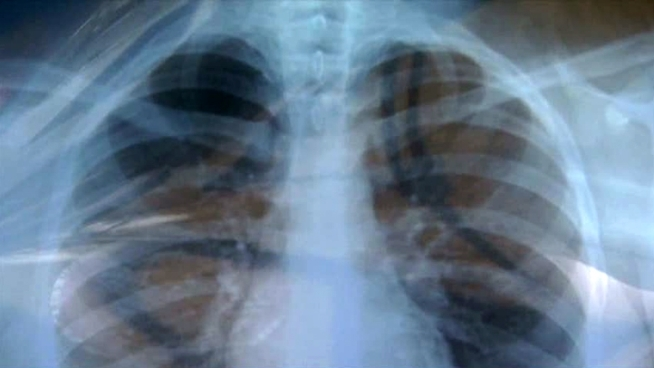 Students who tested positively for exposure to tuberculosis are getting chest X-rays to determine if they have the infection.