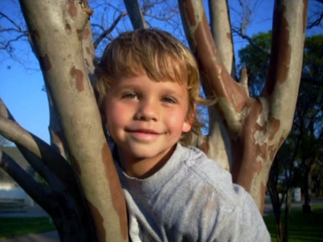 Boy Dies of Rare Disease From Amoeba