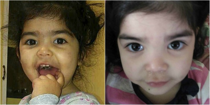 Washington State Mom: Toddler's Eyebrows Waxed at Daycare